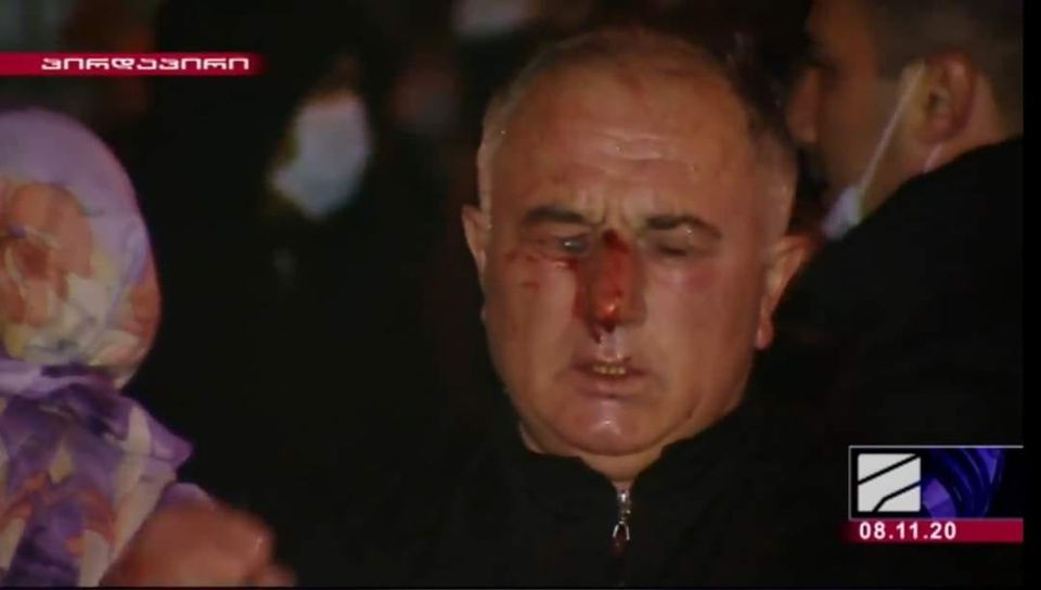 Injured participant of the rally in Tbilisi on November 8, 2020
