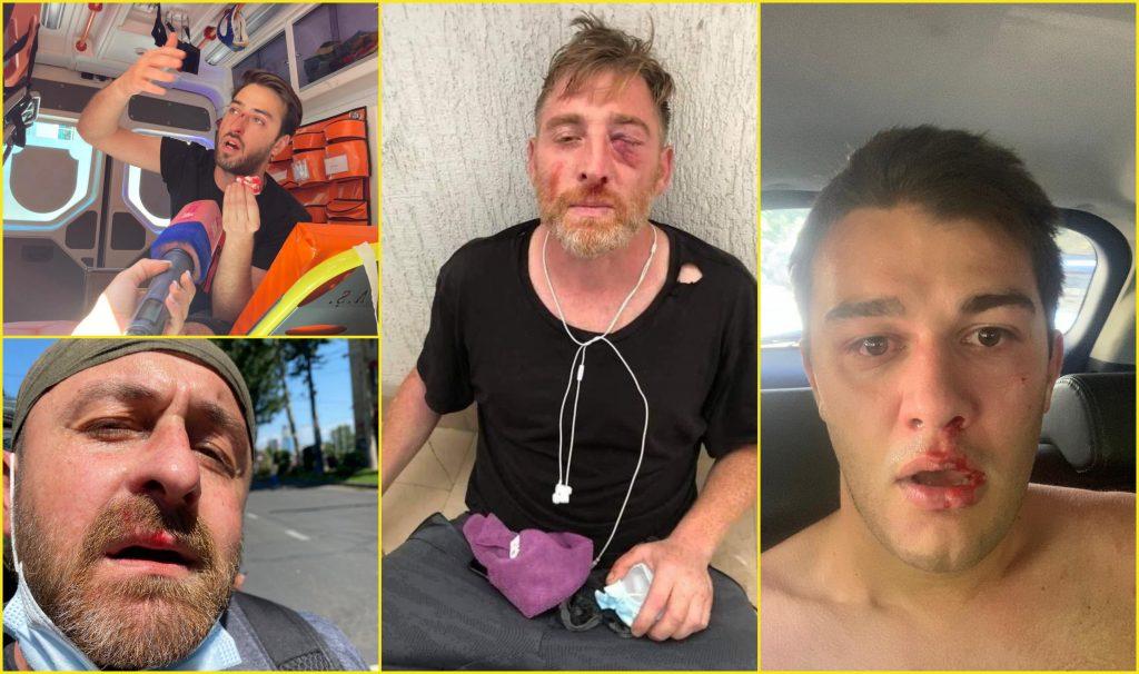 Избитые и раненые журналисты. Что значат избиения сторонников Pride и журналистов в Тбилиси? Анализ и фоторепортаж